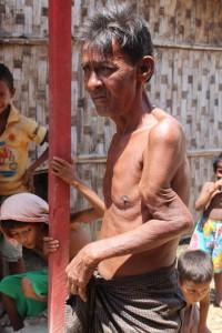 Bij Amir Hussein werd twee jaar geleden zijn arm gebroken door een boeddhistische menigte. Omdat er geen dokter beschikbaar was om de botbreuk te behandelen bungelt zijn linkerarm nu grotesk en nutteloos in een vreemde hoek langs zijn lichaam.